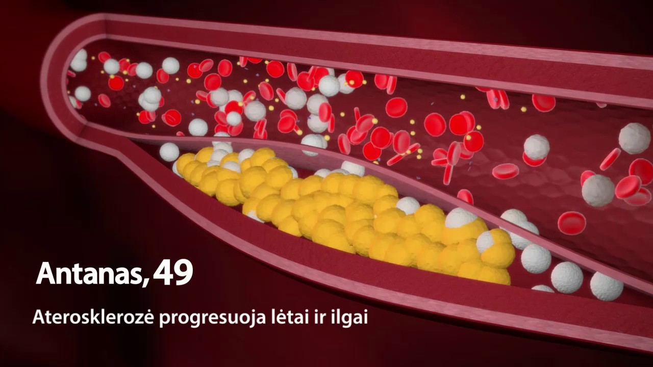 hipertenzija mažas pulsas su hipertenzija prisiimti sutartį