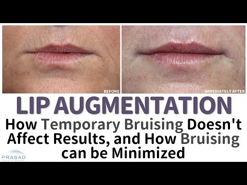 Why Temporary Swelling and Bruising Occur After Lip Augmentation, and How they are Avoided