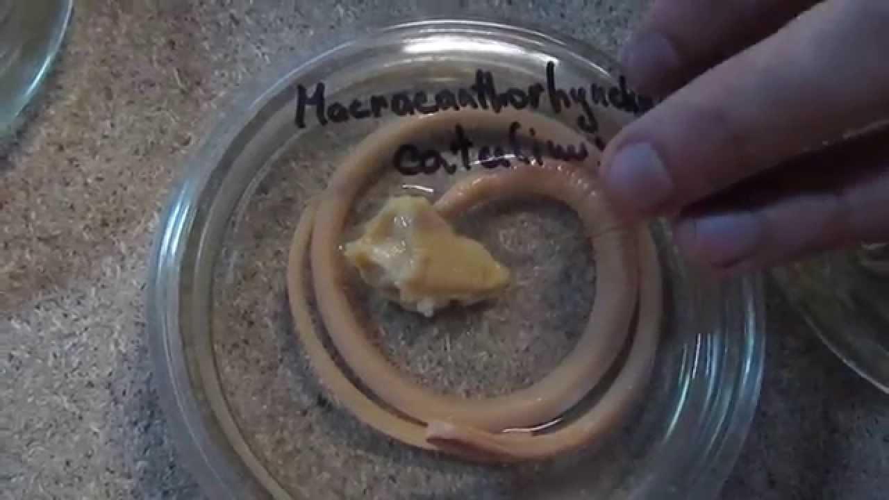 вредные паразиты организме человека