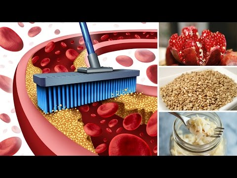 9 Best Foods to Eat to Avoid Clogged Arteries