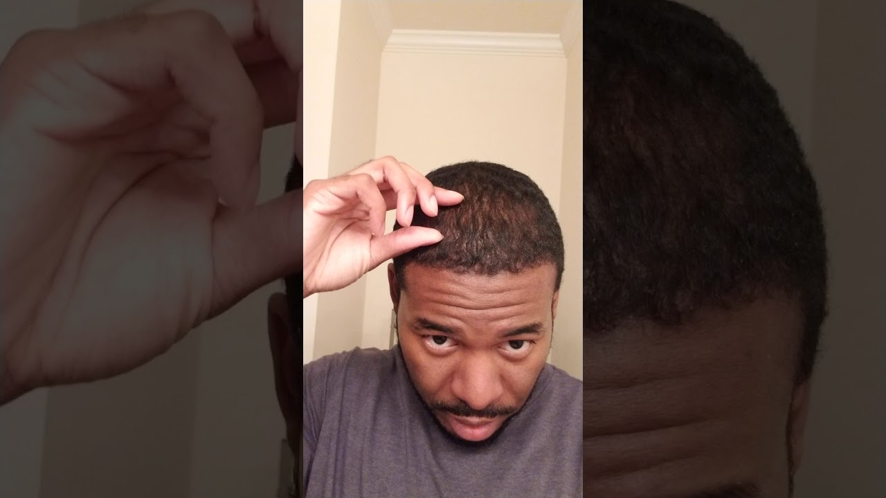 African American Hair Transplant Month 4