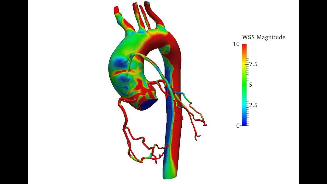 cardiovascular blood flow simulation
