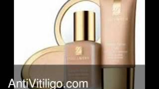 Estee Lauder Vitiligo Makeup Thumbnail