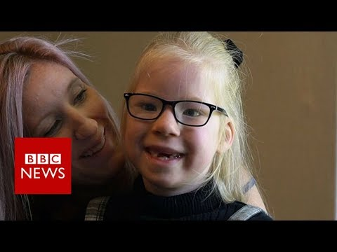 The little girl who is always hungry – BBC News