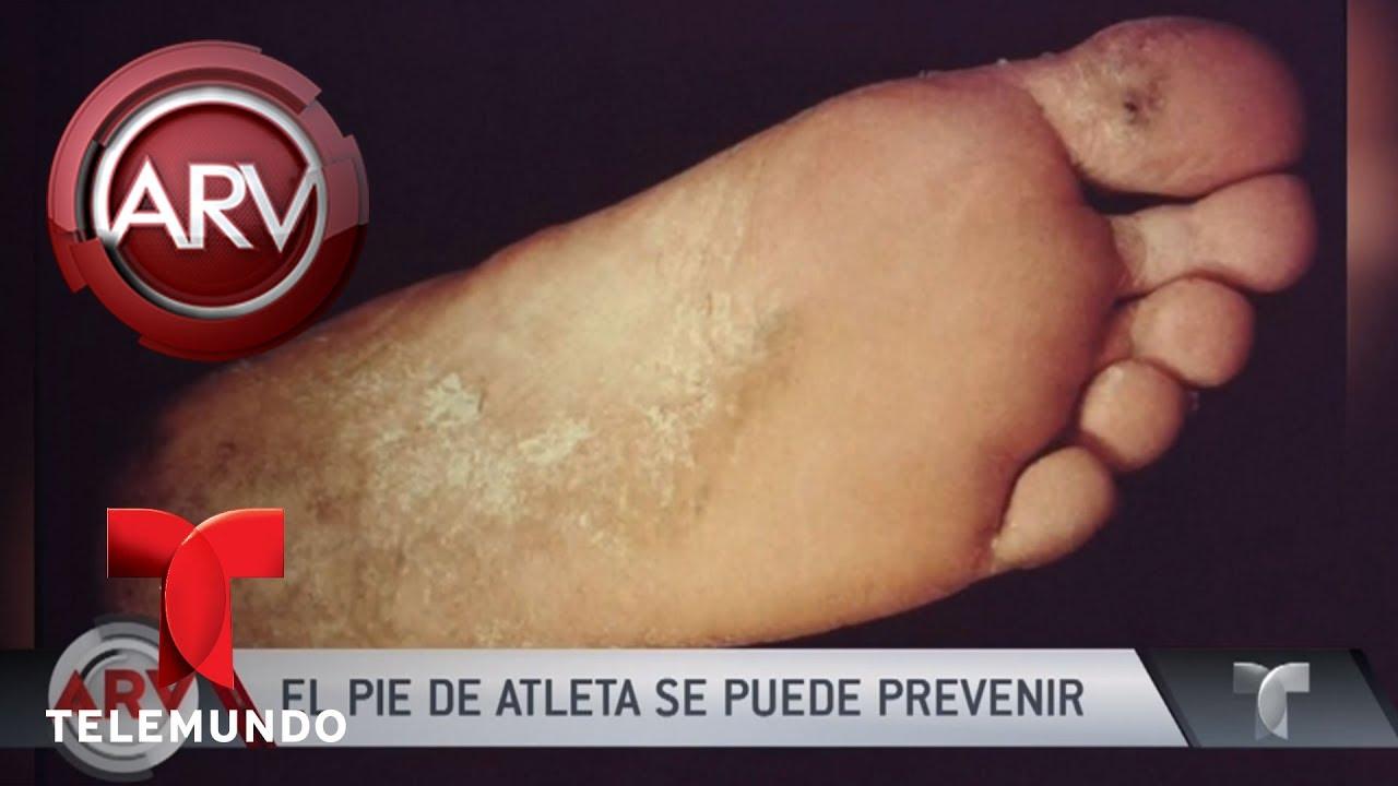 Como eliminar pie de atleta remedios caseros