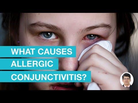 What Causes Allergic Conjunctivitis?