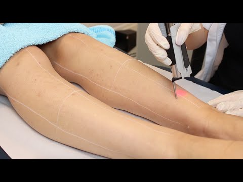 Pulse Light Clinic - How laser hair removal works
