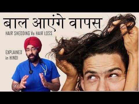 बाल आएंगे वापस | Hair Shedding vs Hair Loss | Explained in Hindi by Dr.Education