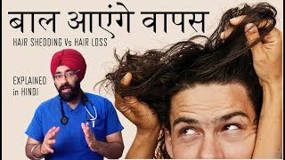 बाल आएंगे वापस | Hair Shedding vs Hair Loss | Explained in Hindi by Dr.Education