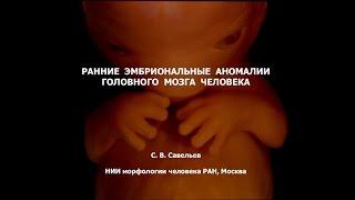 С.В. Савельев: эмбриональные аномалии мозга человека
