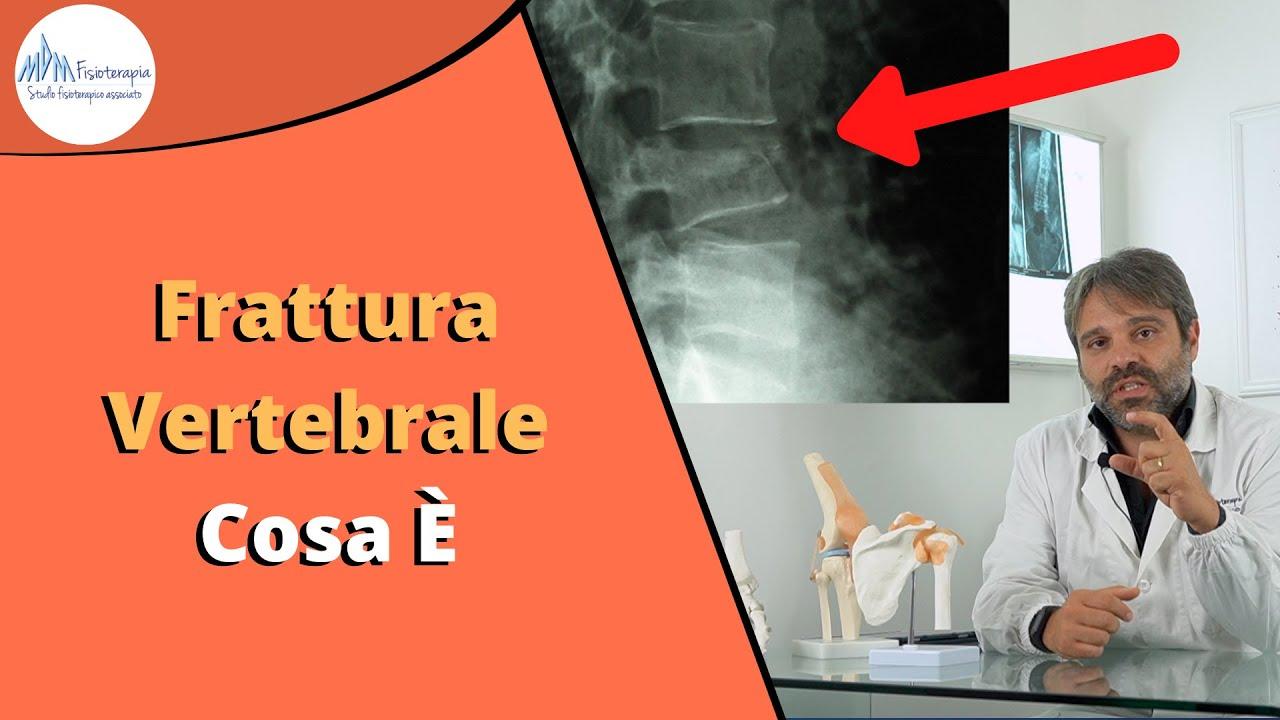 Frattura vertebrale | Cosa è, cosa fare