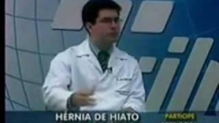 Entrevista sobre Hérnia de Hiato