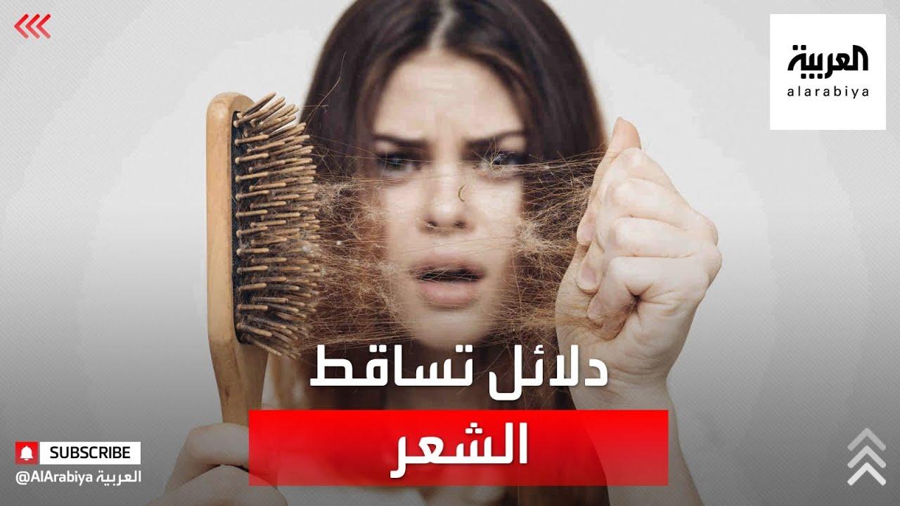 صحتك+ | تساقط الشعر من مخاطر سوء التغذية  - نشر قبل 21 ساعة
