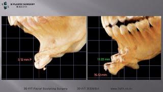 무턱수술중 샌드위치절골 (이중절골전진술) 실제 환자수술…