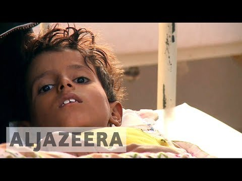 Yemen experiences worst cholera outbreak ever