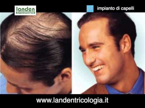 Protesi capelli uomo brescia