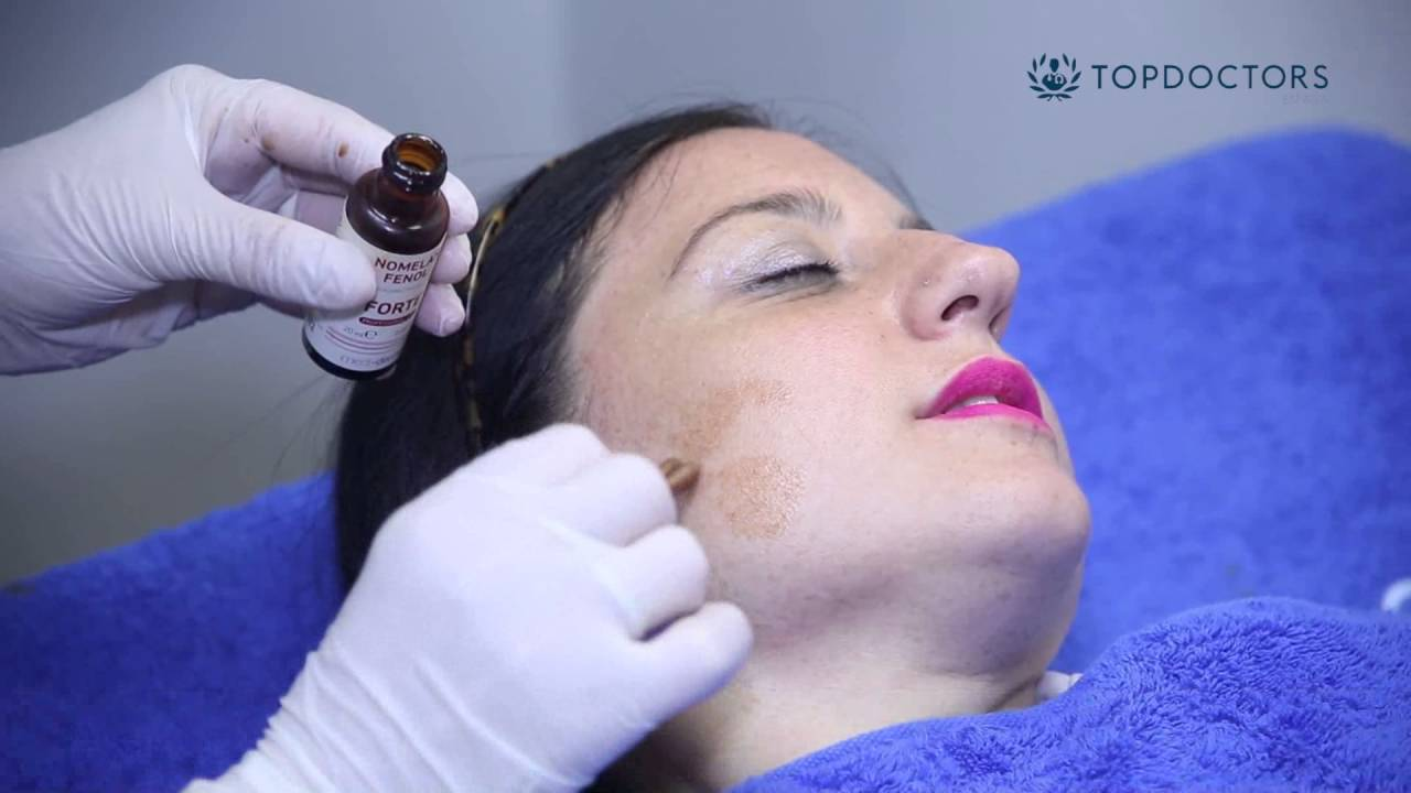 manchas de despigmentacion en la piel