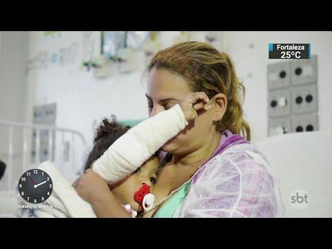 Número de pacientes queimados aumenta durante São João e o Mundial | SBT Notícias (05/07/18)