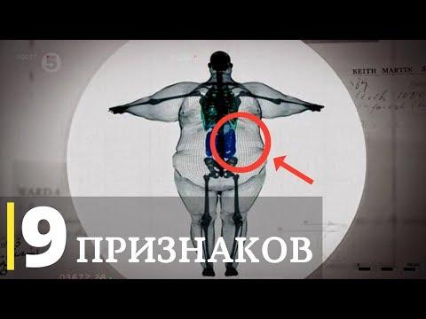 ❗ 9 Признаков Шлаков и Токсинов | Симптомы шлаков, токсинов и мусора в организме
