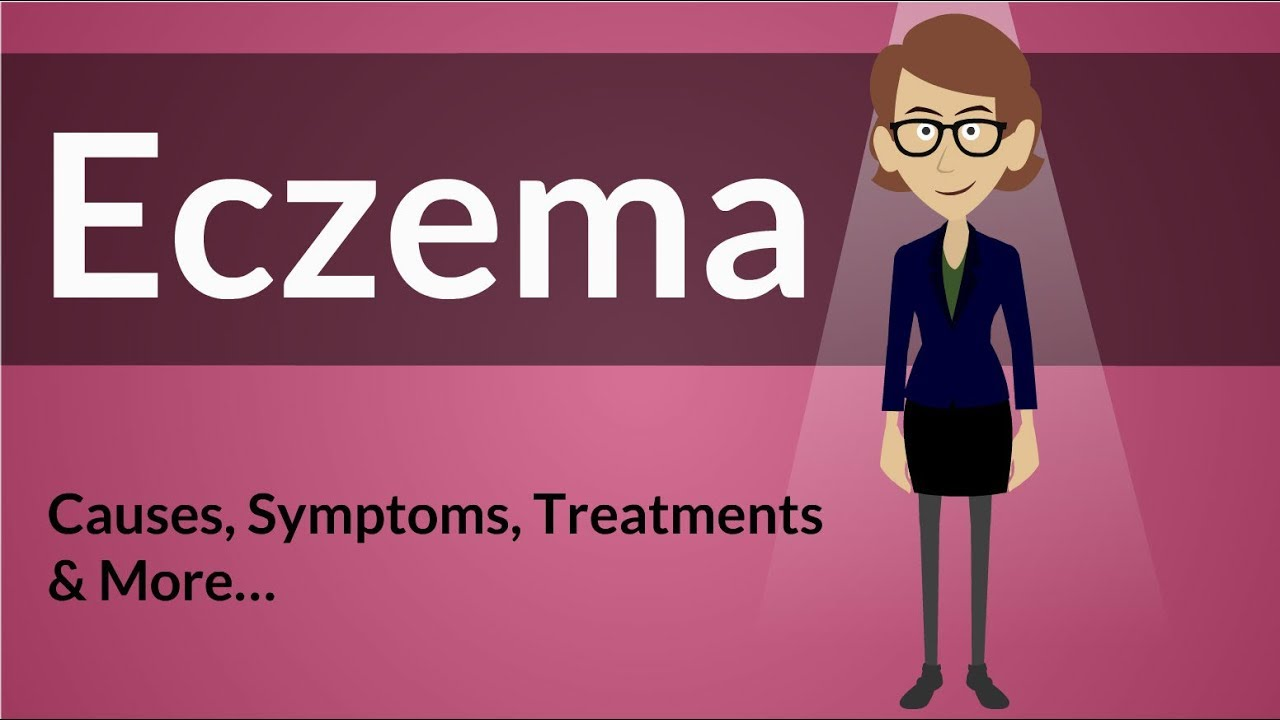 Eczema - Causes, Symptoms, Treatments & More…