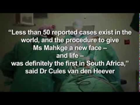 Young woman born without nose gets new face with help of University of Pretoria and Mediclinic.