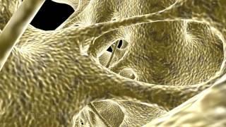 bone trabecula Cancellous trabecular spongy 3d animation company medical san antonio healthcare 3d v