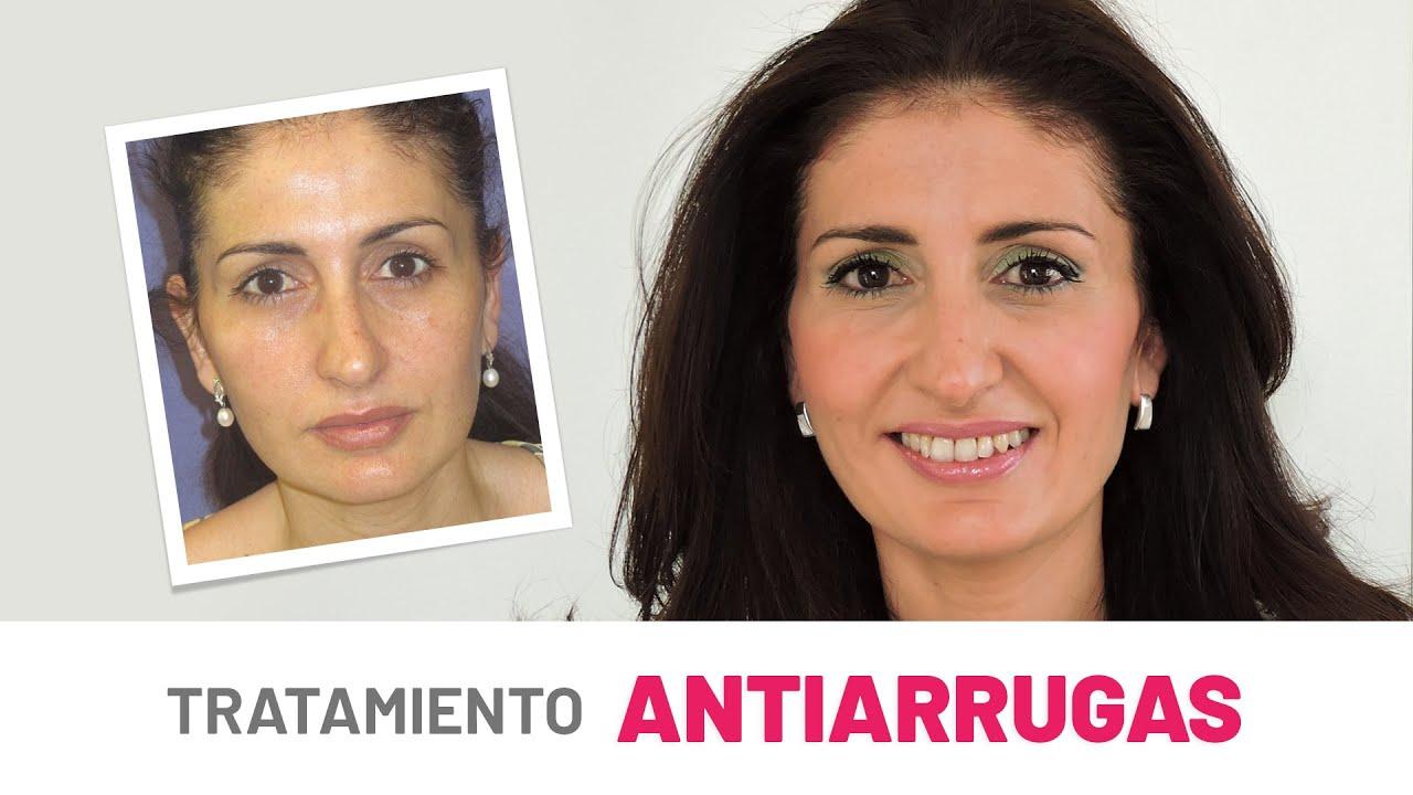 Bótox Antes y Después en la Cara | Resultados Lavinia