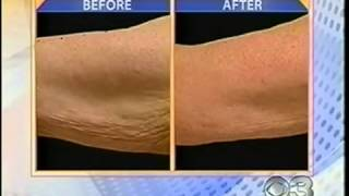 Amazing new Thermage Tightens Loose Arm Skin Sydney MD Cosmedical Solutions
