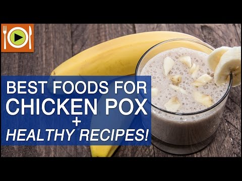 Best Foods For Chicken Pox | Healthy Recipes