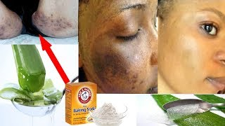 Voiçi comment régénérer sa peau après la dépigmentation