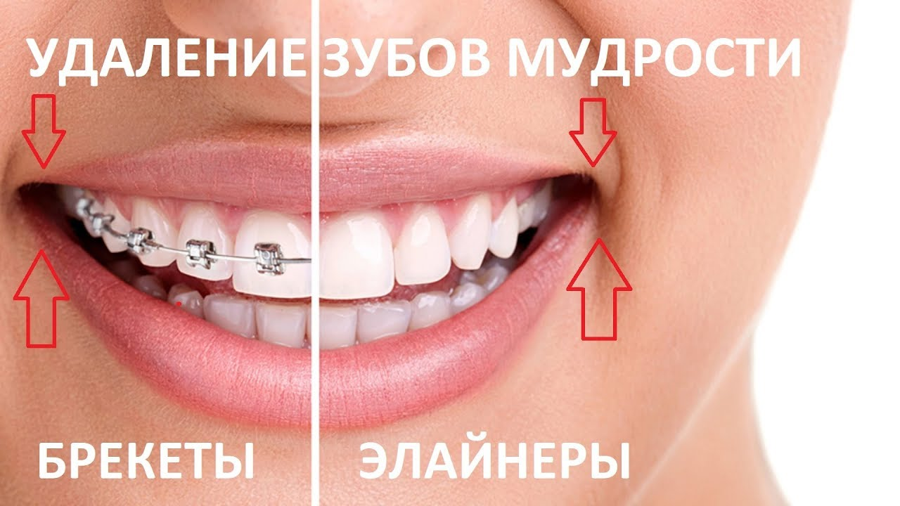 сколько занимает удаление зуба credit europe bank банкоматы спб