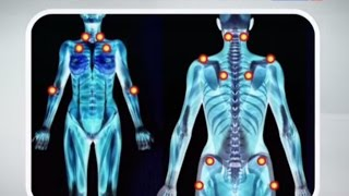 видео Межреберная невралгия: лечение, таблетки против болевого синдрома