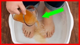 revive tired feet and eliminate toxins with this diy foot detox soak