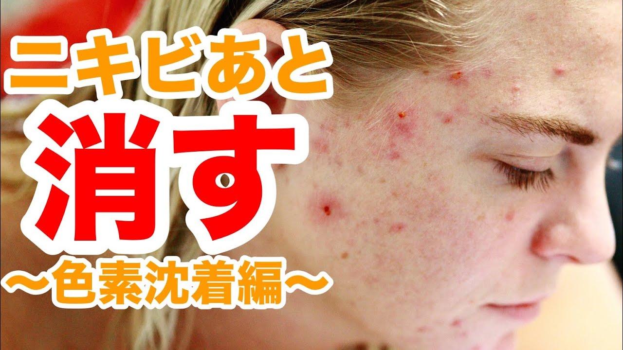 【スキンケア 美肌】ひどいニキビ跡を綺麗さっぱり美肌にする方法:お肌の生まれ変わりを自宅で促進しよう!