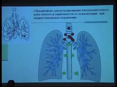 Рак легких, симптомы и лечение рака легкого