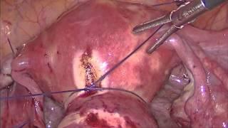 удаление миоматозного узла  из левого угла матки с сохранением маточной трубы(Лапароскопия, консервативная миомэктомия., 2015-12-28T20:04:21.000Z)