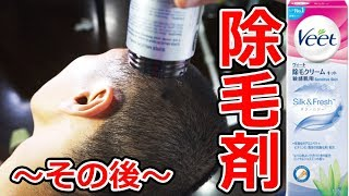 除毛剤で髪が生えないので工夫してみたら再び事故w