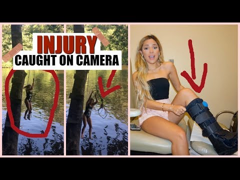 Biggest Rope Swing Fail + Injury Caught on Camera **real footage of accident**