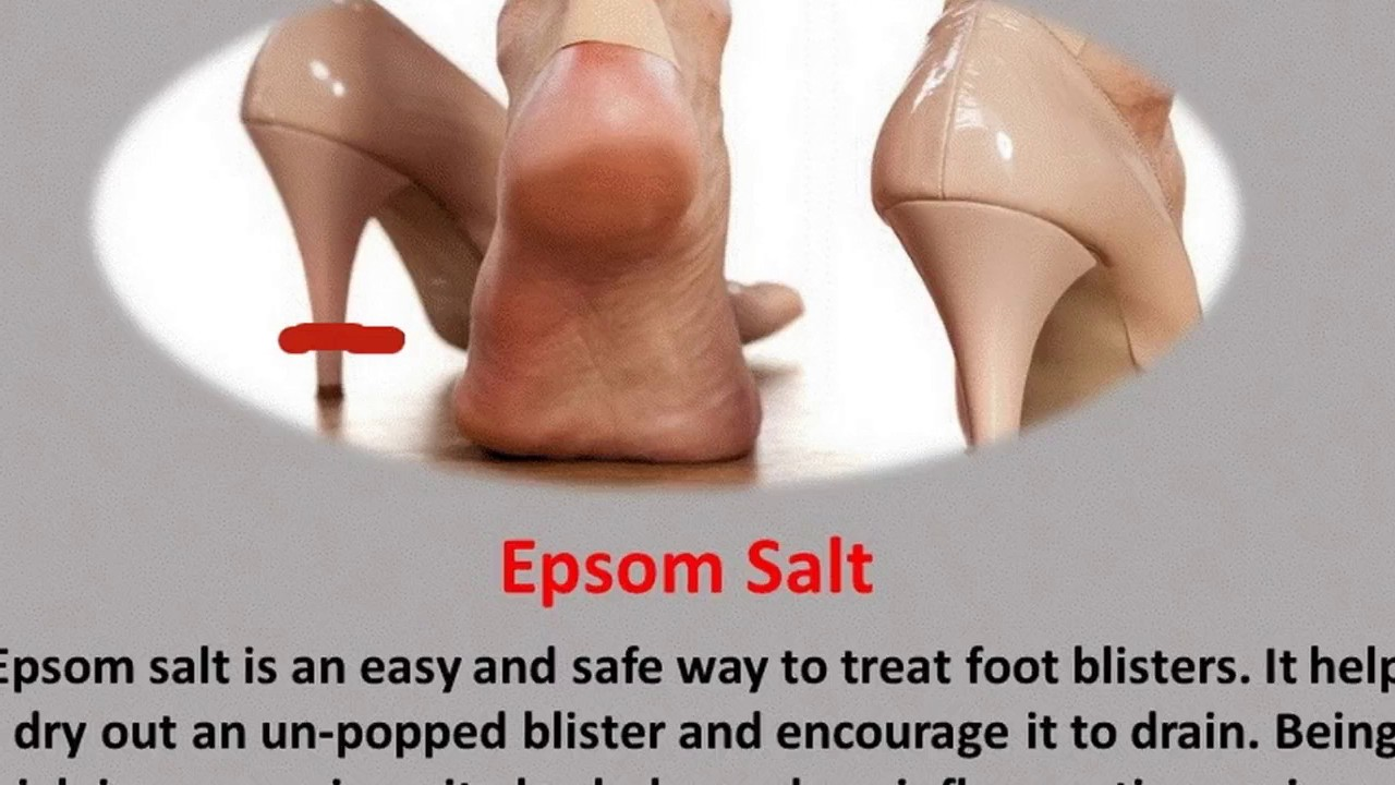 Home remedies to treat the foot blisters