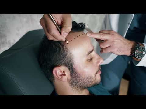 Hair Transplant Turkey | İstanbul PRIME HTC M.D. Resat