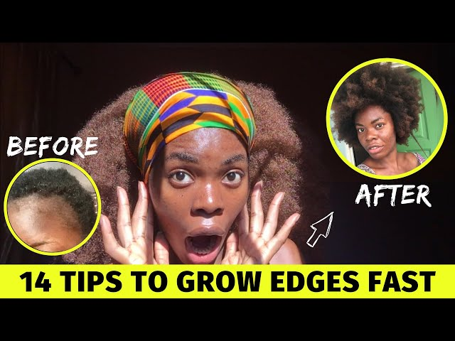 HOW TO GROW YOUR EDGES NATURAL HAIR - Grow 4c Hair Edges Back FAST
