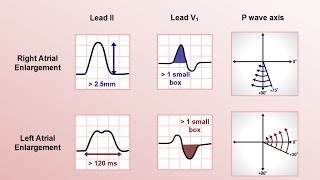 Intro to EKG Interpretation - Chamber Enlargement