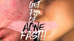 hqdefault - Best Way Get Rid Acne Scars Fast