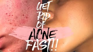 One of ALYSSA FOREVER's most viewed videos: How to Get Rid of Acne & Acne Scars FAST!!