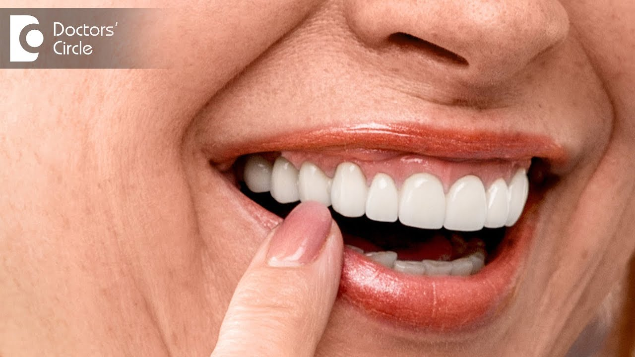 What are the advantages of dental implants over bridges? - Dr ...
