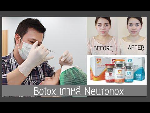 รีวิวผลการฉีด Botox เกาหลี Neuronox