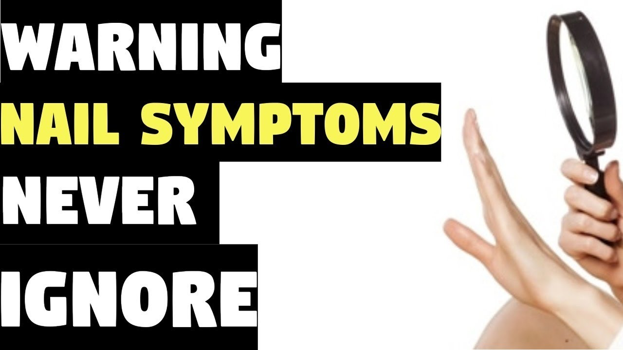 Nail Symptoms and What It Means for Your Health! | Nail Symptoms ...