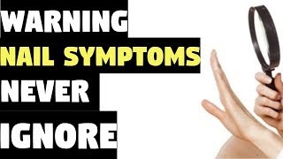 Nail Symptoms and What It Means for Your Health!   Nail Symptoms