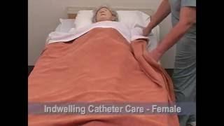 cna 17 indwelling catheter care