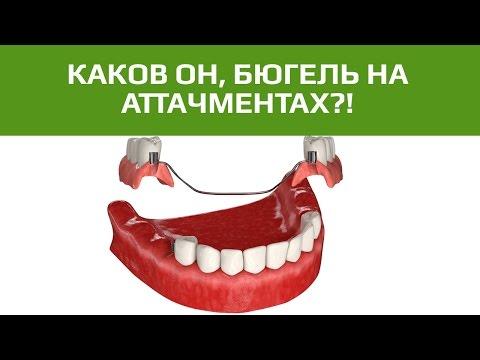 Коронки из металлокерамики по низким ценам в Москве